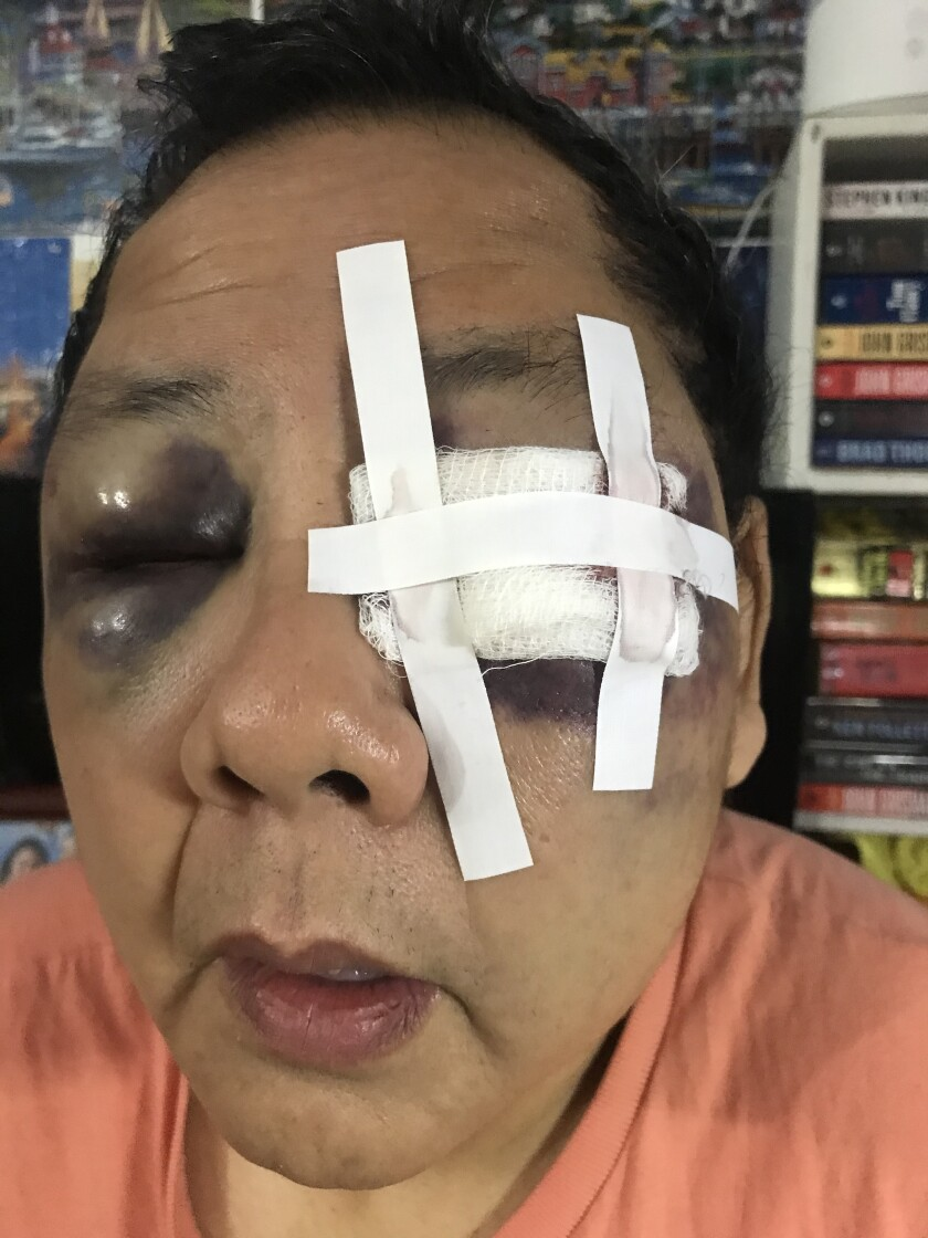 Yuchang's eyes are dark with bruises, and a patch of white gauze covers his left eye
